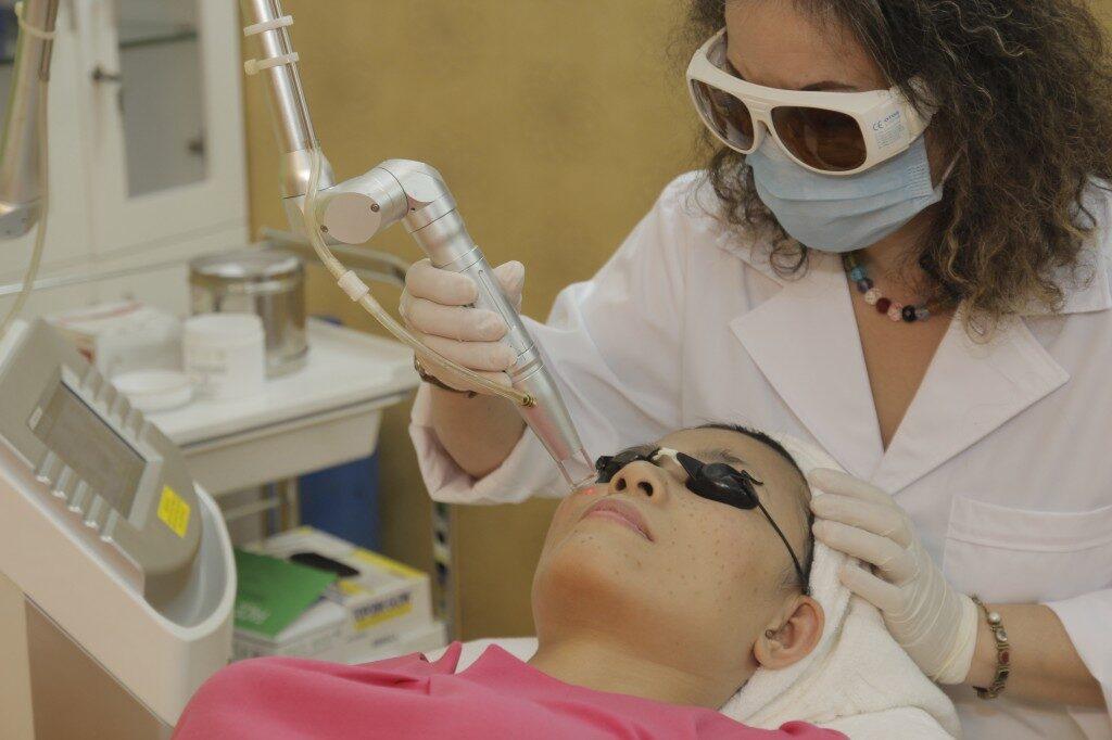 Một trong những phương pháp ngăn ngừa nám hiệu quả là phương pháp laser