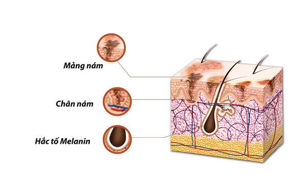 Những chất giúp kìm hãm melanin để cải thiện nám