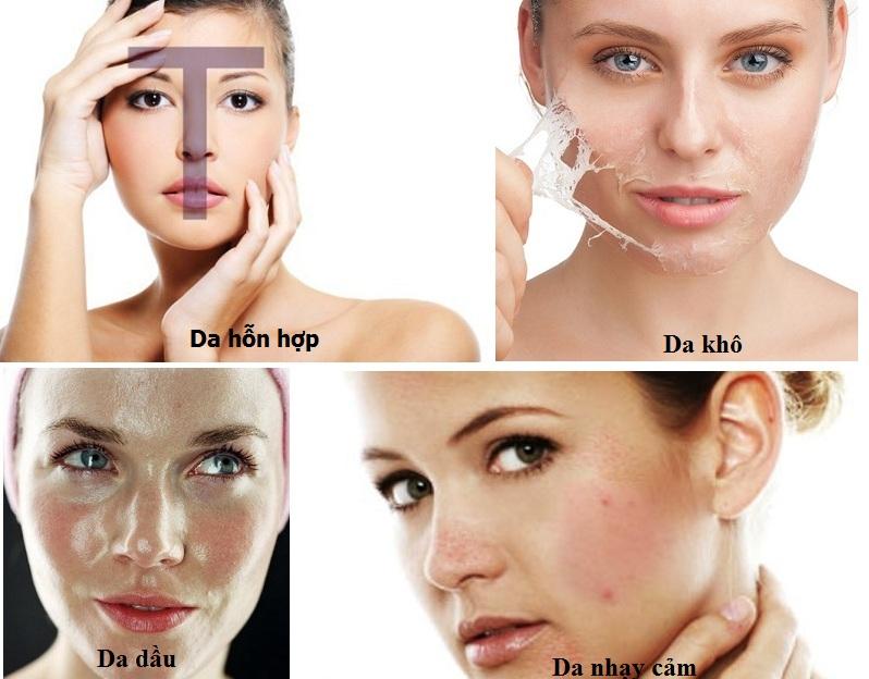"""da dầu là loại da dễ bị mụn nhưng các loại da khác cũng là nạn nhân bị mụn """"tấn công"""""""
