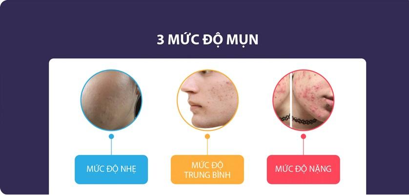 3 mức độ mụn trên da