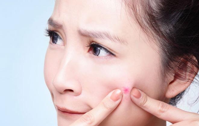 Nặn mụn là một trong những nguyên nhân gây mụn viêm
