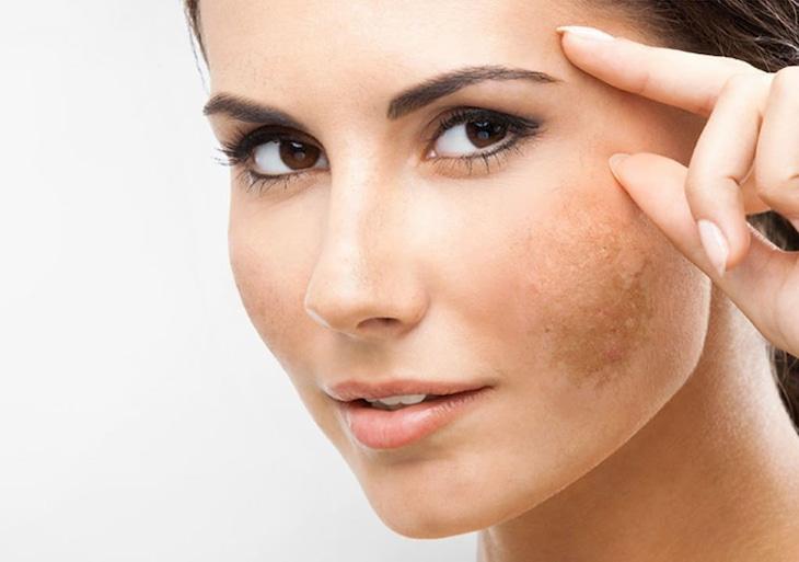 Nám da mặt là tình trạng tăng sinh hắc sắc tố melanin quá mức hình thành nên những đốm đậm màu nâu. Đây là 5 phương pháp trị nám da từ thiên nhiên